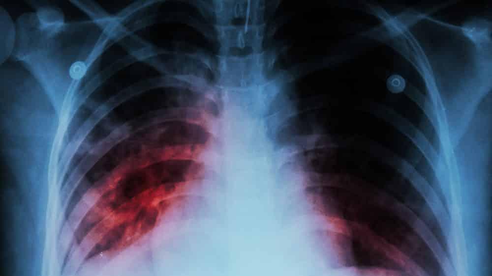 radiografia de pulmão de paciente com tuberculose