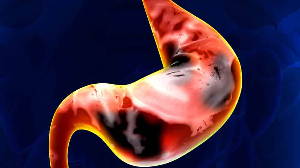 Ilustração digital de estômago com manchas pretas representando câncer de estômago.