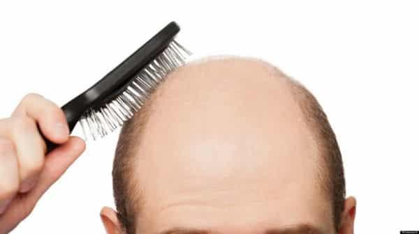 Calvície (alopecia androgenética)