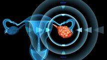 Ilustração digital de um sistema reprodutor feminino com setas apontando para um ovário policístico.