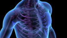 Osteogênese imperfeita (ossos de vidro, doença de Lobstein ou doença de Ekman Lobstein)