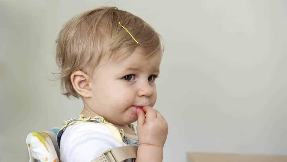 Bebê sentado em cadeirinha com erupções da doença mão-pé-boca.