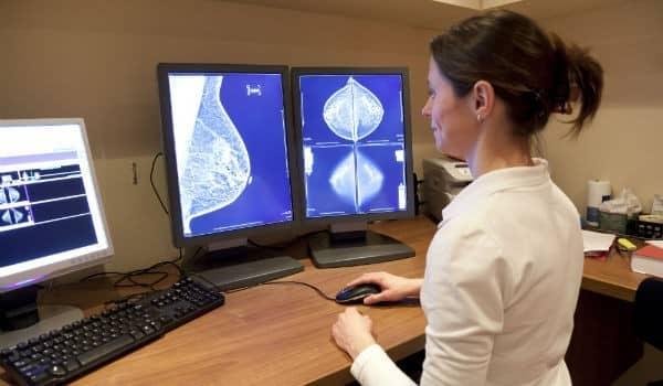 Mulheres estão detectando o câncer de mama mais precocemente