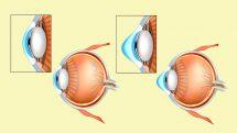 Ilustrações comparando perfis de um olho normal e um olho com ceratocone.