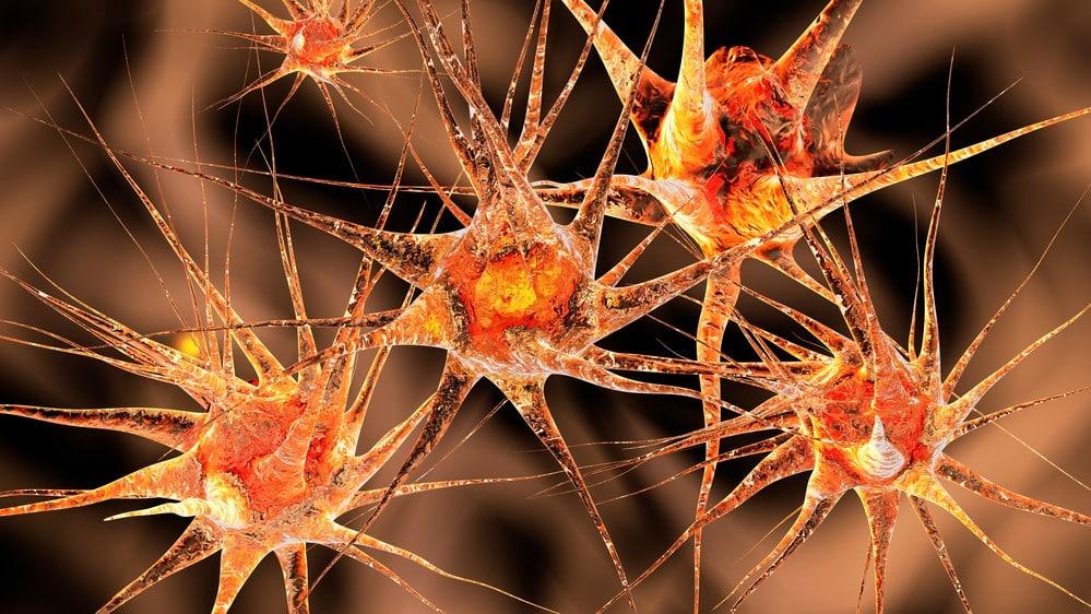 rede neural em 3D. Estimulação cerebral profunda ajuda a tratar várias doenças