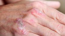 Close em lesões de psoríase nas falanges de uma mão.
