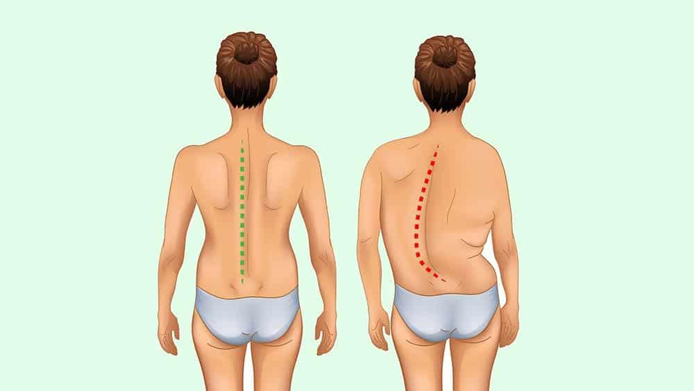 Ilustrações de mulheres de costas, uma com coluna normal à esquerda e outra com escoliose à direita.