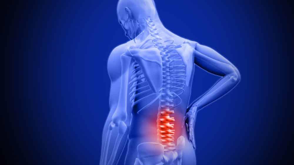 desenho em 3D de homem com dor na região lombar