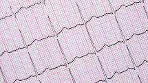 Eletrocardiograma.
