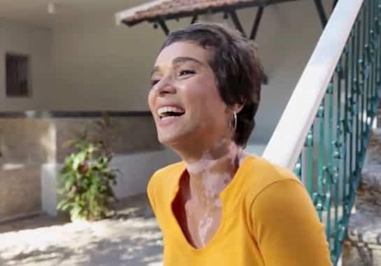 Modelo Eliane Medeiros, portadora de vitiligo.