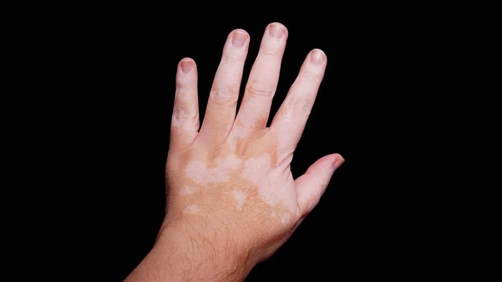vitiligo pele dermato