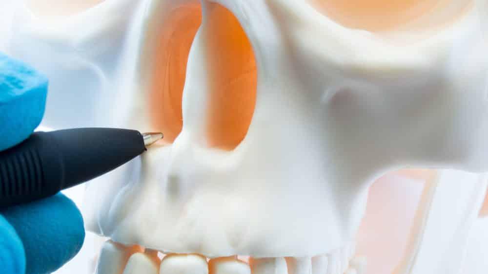 close no septo nasal de esqueleto