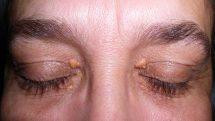 Mulher de olhos fechados com xantelasmas nas pálpebras.