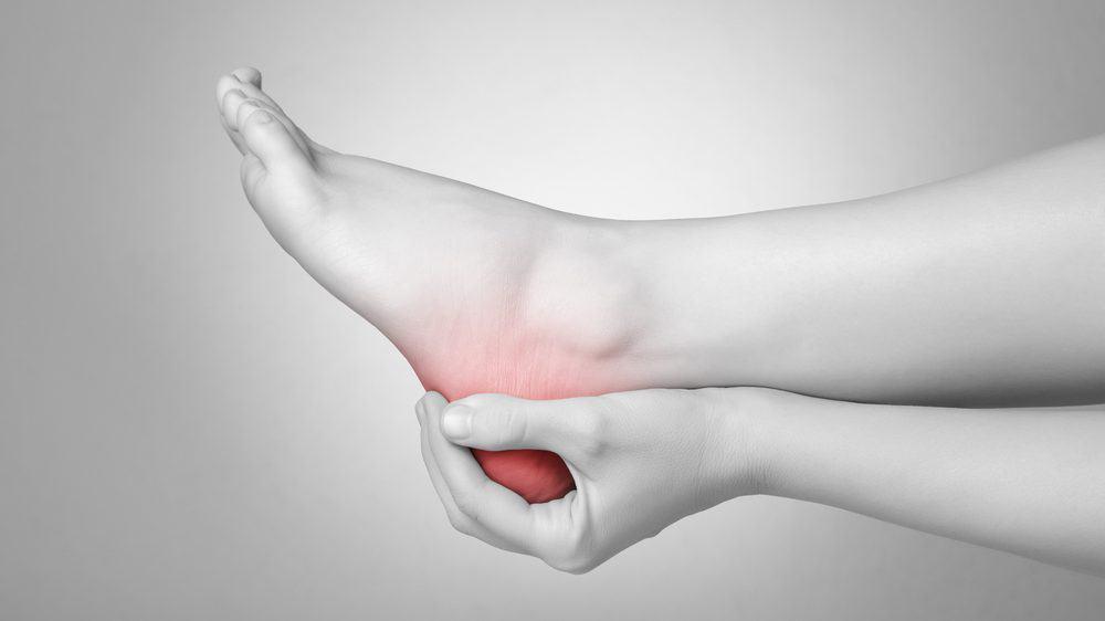 close no pé de mulher massageando o calcanhar dolorido. Esporão do calcâneo causa dor na região do calcanhar