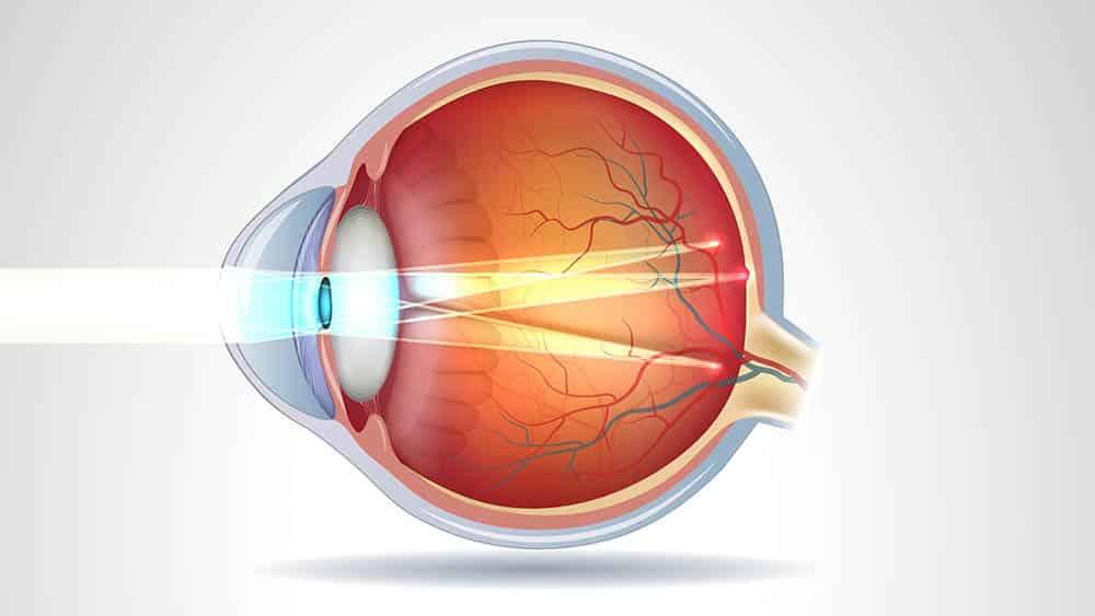 Ilustração de ação da luz em olho com astigmatismo.