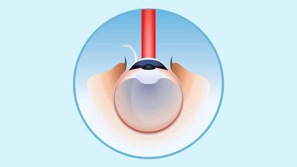 Ilustração representando laser sobre córnea após corte no epitélio.