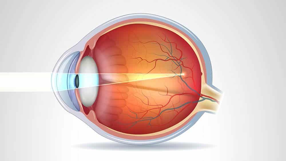 Ilustração de ação da luz em olho com miopia.