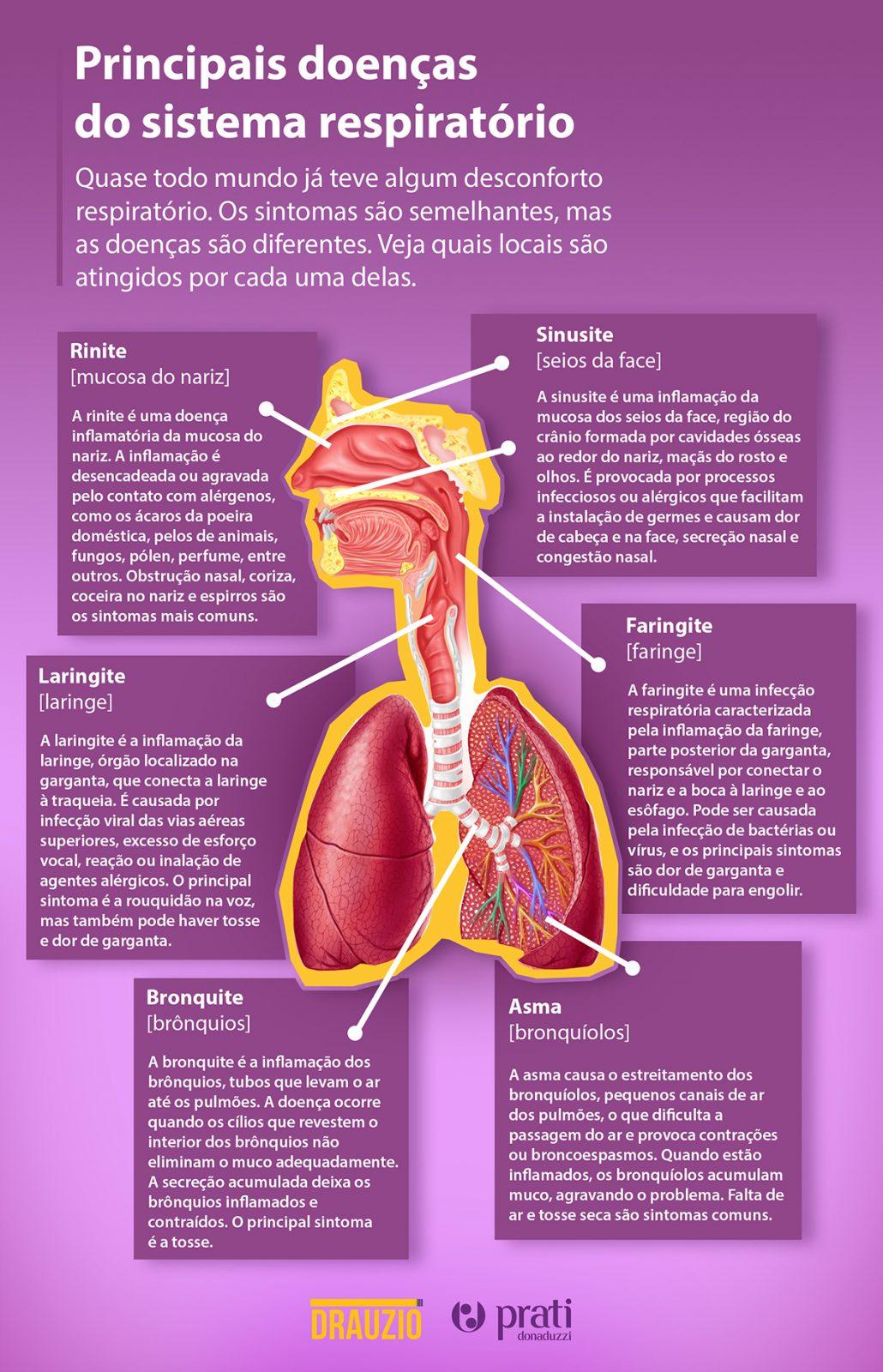 Infográfico com as principais doenças respiratórias, rinite, sinusite, laringite, faringite, bronquite e asma.