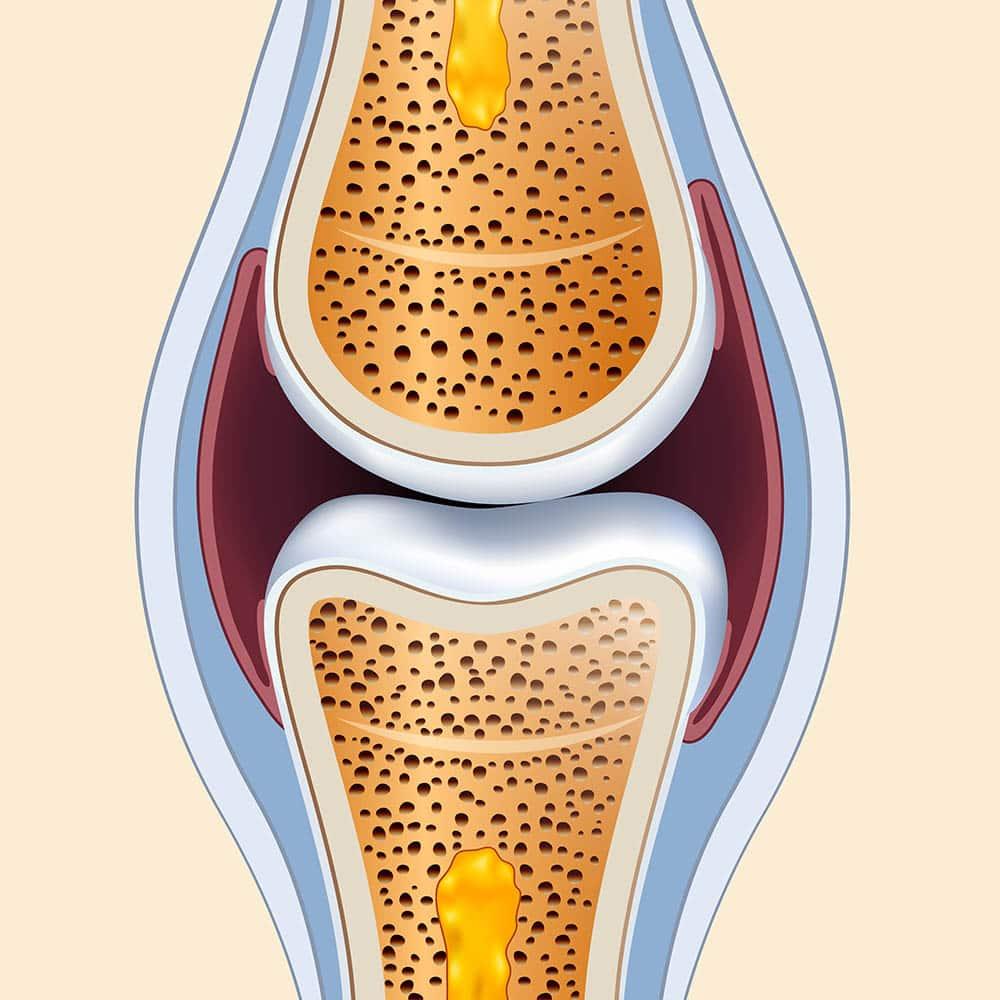 Ilustração de articulação. Em vermelho, a membrana sinovial, que inflama em casos de artrite.