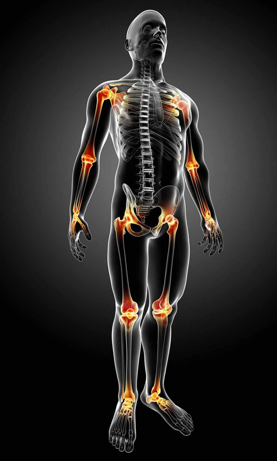 Ilustração de corpo humano masculino com principais pontos de dor articular destacadas.