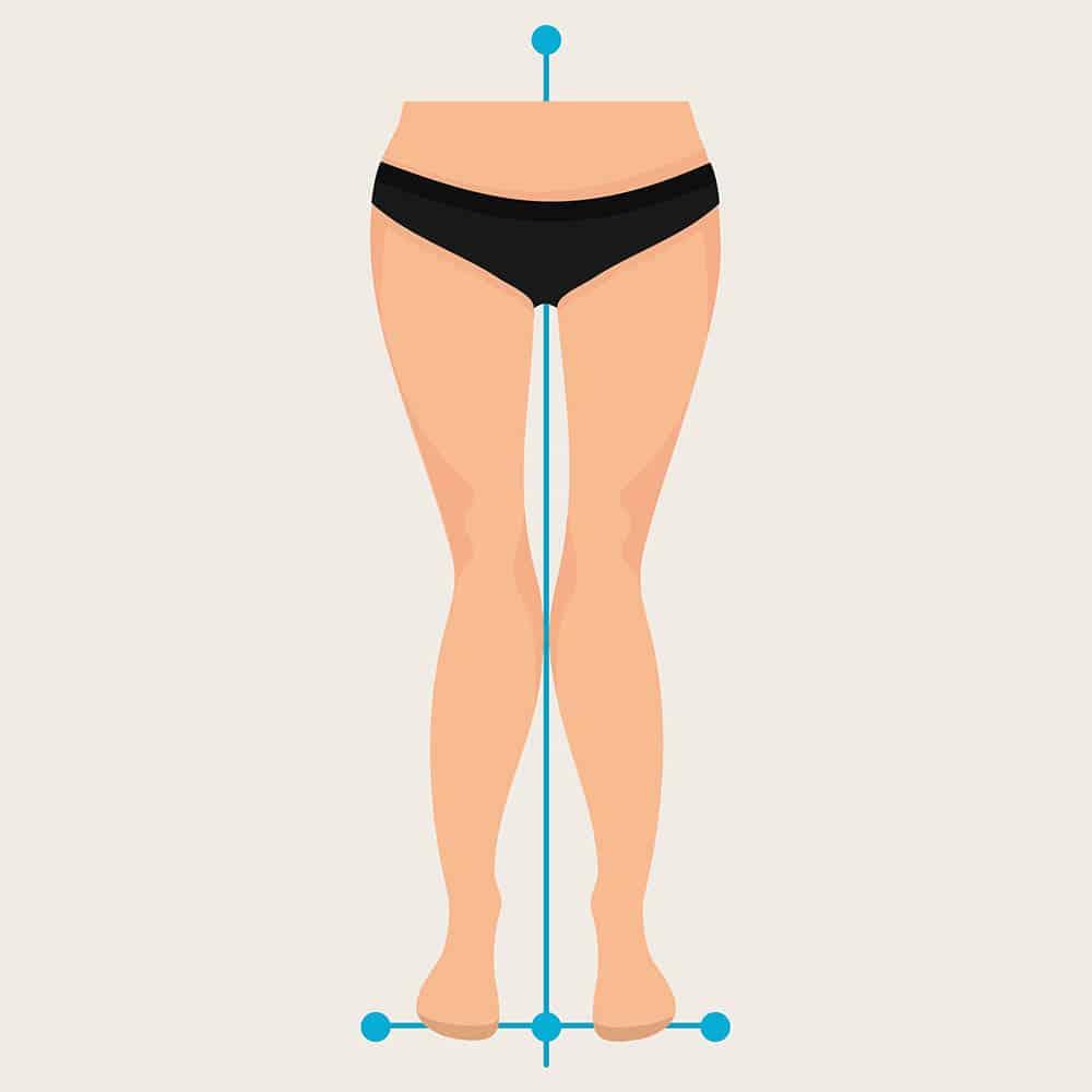 Ilustração demonstrando joelho valgo, ou em X, com joelhos voltados para dentro.