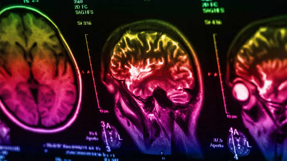 Ressonância de cérebro colorida digitalmente.