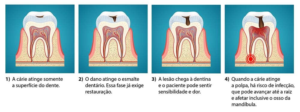 Quatro ilustrações mostrando as fases da cárie.