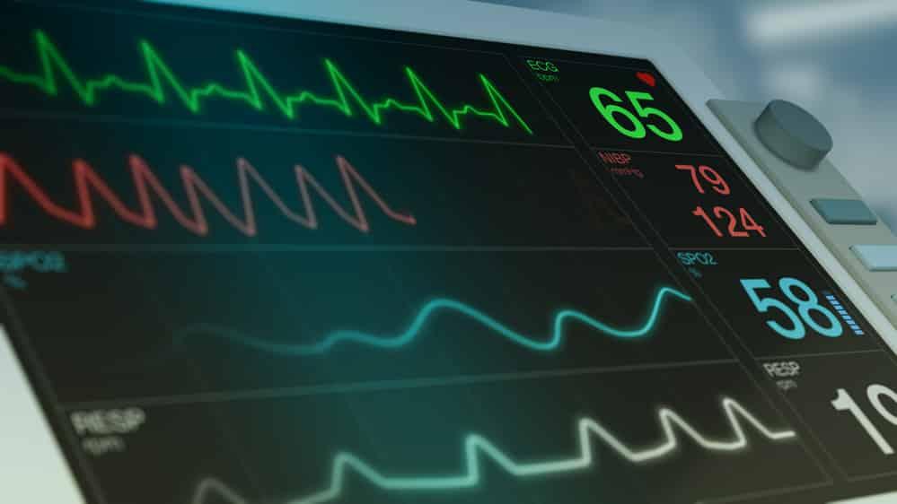 monitor cardíaco. relação entre mortalidade e coronavírus no Brasil é complexa