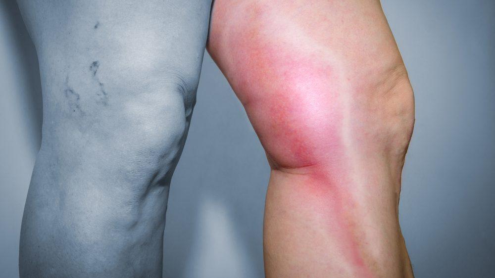 pernas com flebite e tromboflebite